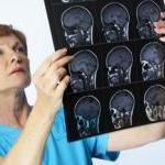 Looking Inside the Vegan Brain by Steve Martindale
